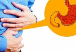 Ciri-ciri Penyakit Maag