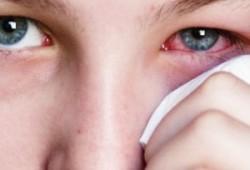 Bagaimana Mencegah Sakit Mata dan Cara Alami untuk Mengobatinya