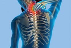 Penyakit Tulang Belakang dan Penyebabnya