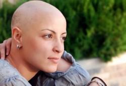 Pengidap Kanker Makin Bertambah, Sebagian Besar Berusia Dewasa dan Lanjut