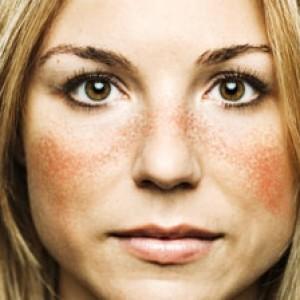 Pengertian Penyakit Lupus beserta Fakta yang menyertai Lupus