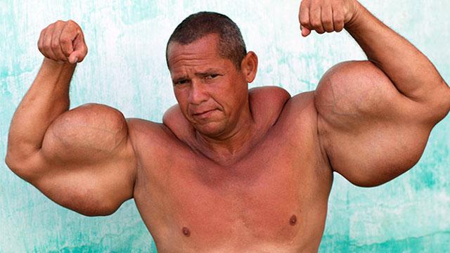 Synthol: Cara Cepat Membentuk Otot dengan Efek Samping Berisiko