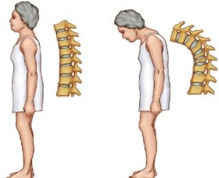 Penyakit Degeneratif Tulang : Osteoporosis dan Penyebabnya