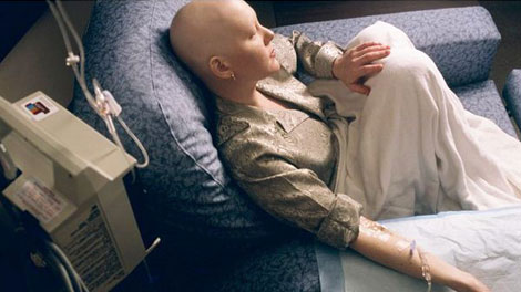 penderita kanker otak - acemaxscare.com