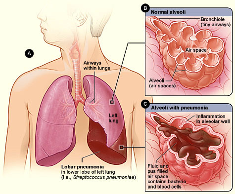 Terapi Pengobatan dan Pencegahan untuk Penderita Pneumonia