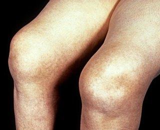 10 Ciri-ciri Komplikasi Rematik / Rheumathoid Arthritis