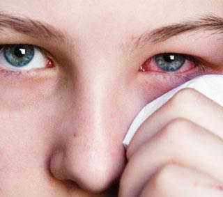 Jenis – jenis Penyakit dan Gangguan Mata