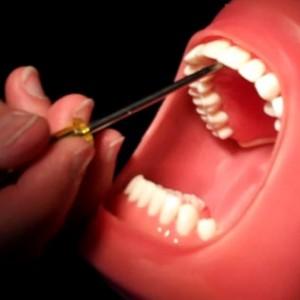 Kenali Penyebab dan Cara Mengatasi Bau Mulut yang Mengganggu