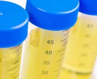 Albuminuria / Proteinuria : Definisi, Gejala, Penyebab, Tes diagnostik, dan Pengobatannya