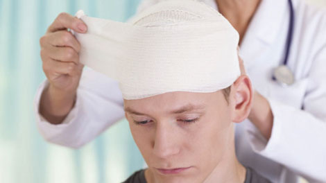 Cedera Otak Traumatis - manfaatairhidrogen.com