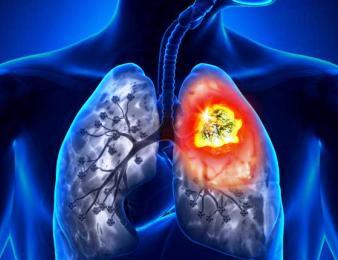 Patofisiologi & Pathway Kanker Paru | SEHAT.link