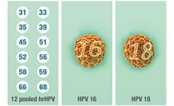 HPV penyebab kanker serviks