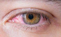 Infeksi Herpes pada Kornea