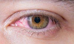 Gejala dan Pengobatan Infeksi Herpes pada Kornea