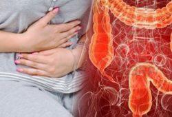 Tentang Kanker Kolorektal: Faktor Risiko, Diagnosis, dan Pengobatan