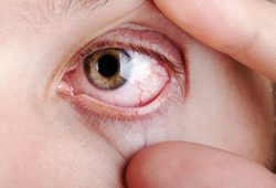 Awas, Mata Kering Pertanda Gangguan Tiroid
