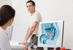 4 Tips Atasi Pembesaran Prostat