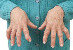 Konsumsi Ikan Meringankan Rheumatoid Arthritis?
