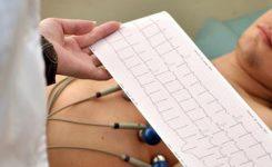 Tes-Electrocardiogram