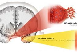 Terapi dan Pengobatan untuk Pasien Stroke Hemoragik – Pasca Operasi