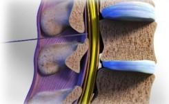 injeksi steroid tulang belakang