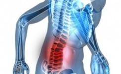 kanker tulang belakang