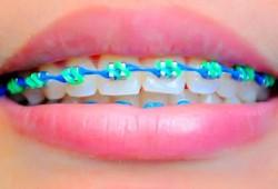 Biaya Pasang Kawat Gigi di Dokter Gigi