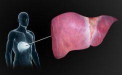 liver-disease