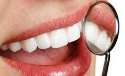 pasang-gigi-palsu