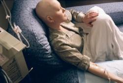 Waspadai, Ini Ciri-ciri Penderita Kanker Otak