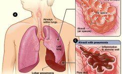 pneumonia-wikipedia