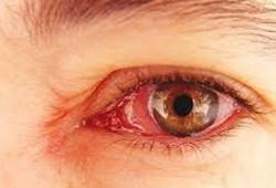 Sakit Mata Bisa Menular Melalui Pandangan dan Udara, Benarkah?
