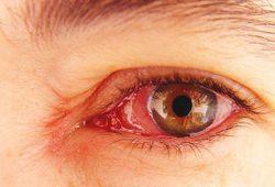 Sakit Mata Menular, Bagaimana Cara Mencegah dan Mengobatinya?