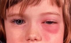sellulitis di wajah