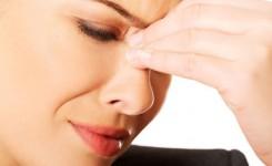 sinusitis-akut