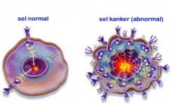 terinfeksi sel kanker