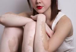 Terapi untuk Memperbaiki Warna Kulit pada Penderita Vitiligo
