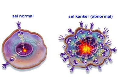 Perbedaan Tumor dan Kanker   SEHAT.link